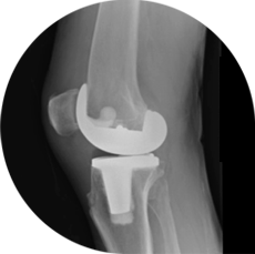 Knee replacement, lateral view